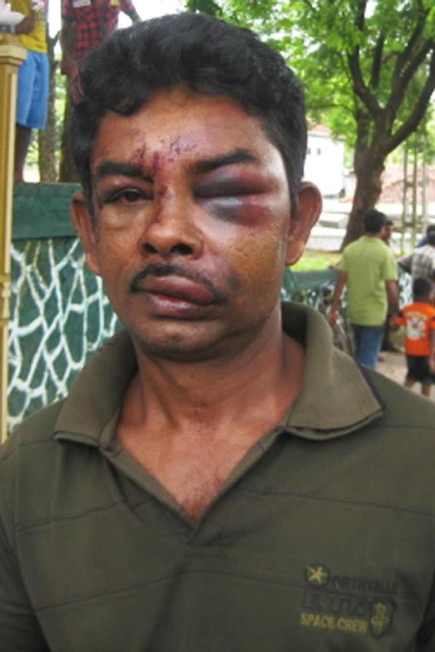 Sri Lankan survivor of the army assault